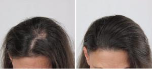 håravfall stress depression